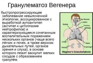 Диагностика гранулематоза Вегенера