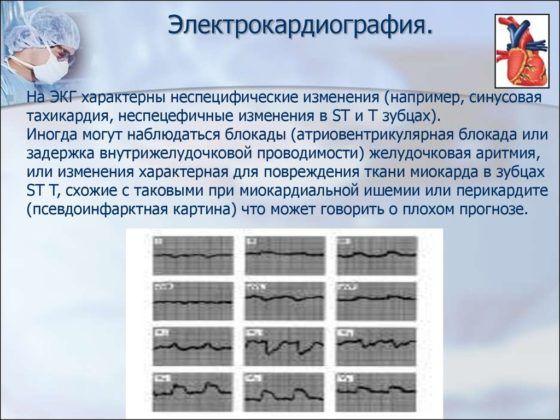 Электрокардиография проводится перед бронхоскопией