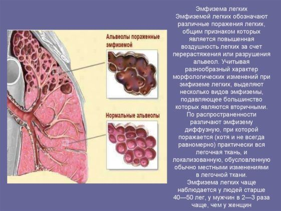 Инородное тело может привести к эмфиземе
