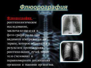 Флюрагрофия легких для профилактики рака бронхов