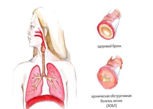 Хроническая обструкция легких