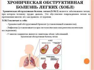 Хроническое обструктивное заболевание легких