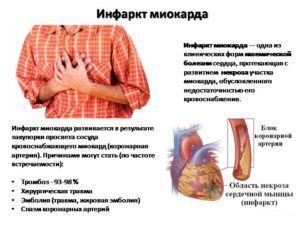 Инфаркт миокарда может возникнуть при отсутствии лечения боли при кашле