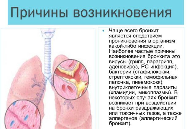Инфекционный бронхит
