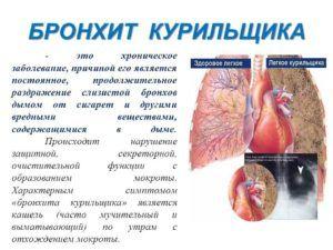 Таблетки помогают при кашле курильщика