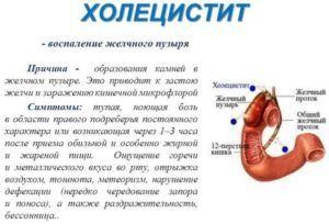 Леденцы запрещены при холецистите