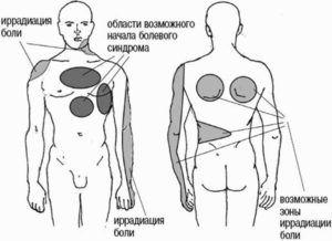 Локализация боли в области груди