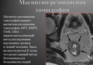 МРТ легких для диагностики рака бронхита