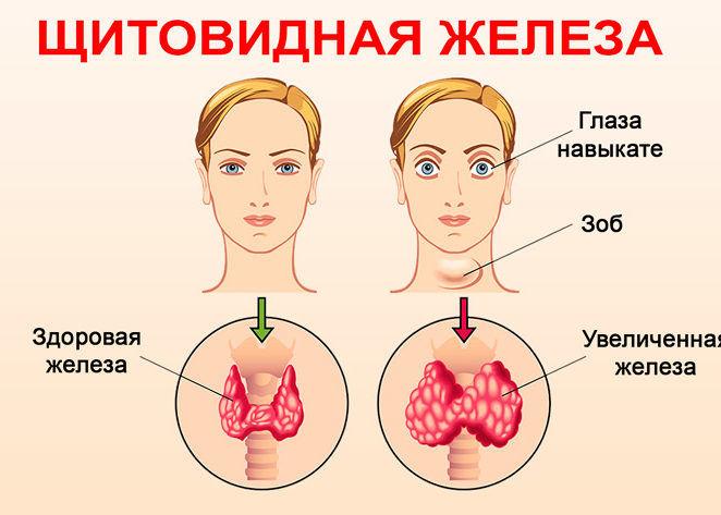 Нарушения в работе щитовидной железы