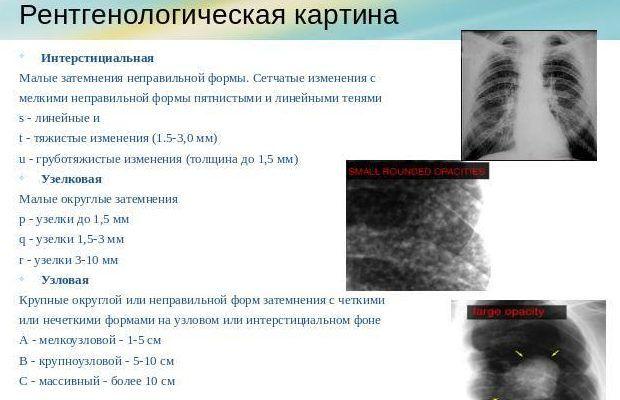 По рентгеноморфологическим признакам воспаление лёгких разделяют