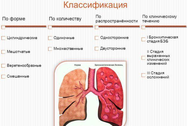 По симметричности воспаления