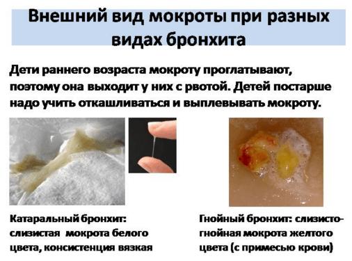 Повышенные выделение мокроты при катаральном бронхите