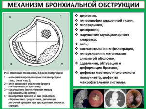 При бронхообструкции запрещено применять ингалипт