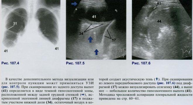 При ультразвуковом изучении бронхов в норме визуализируются такие структуры