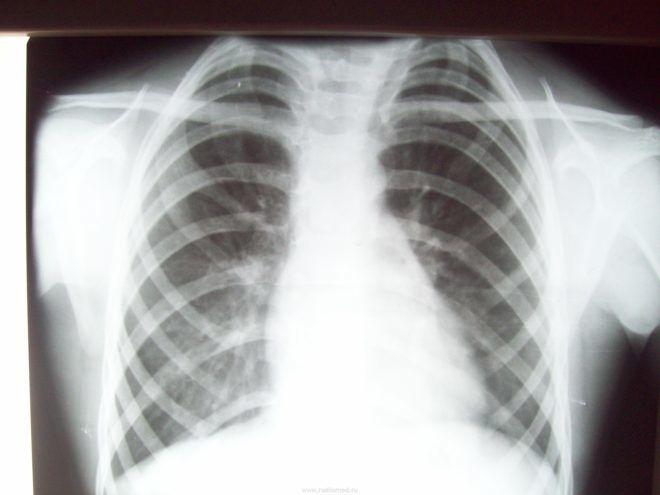 Рубцы в легких при пневмонии