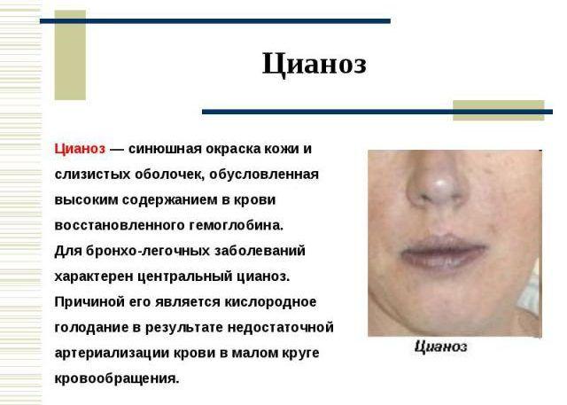 Цианоз кожи