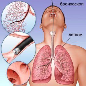 Препарат применяют на кануне бронхоскопии