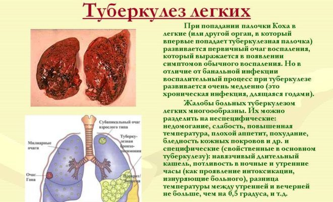 Туберкулез является причиной бронхоспазма