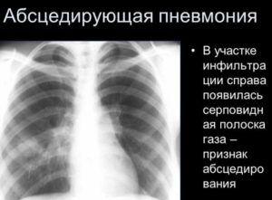 Абсцедирующую пневмонию