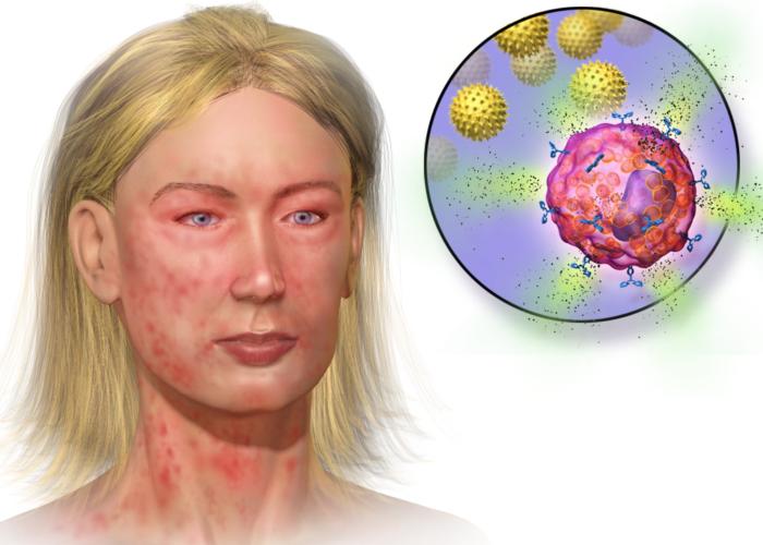Аллергическая реакция на антропин