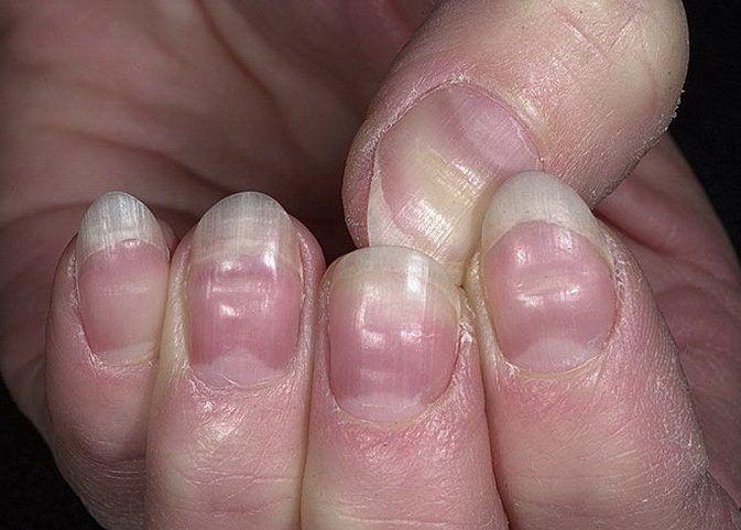 Деформация ногтевых пластин