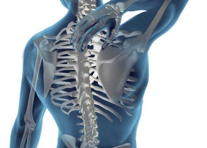 Деформация скелета