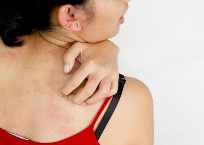Кожные инфекции