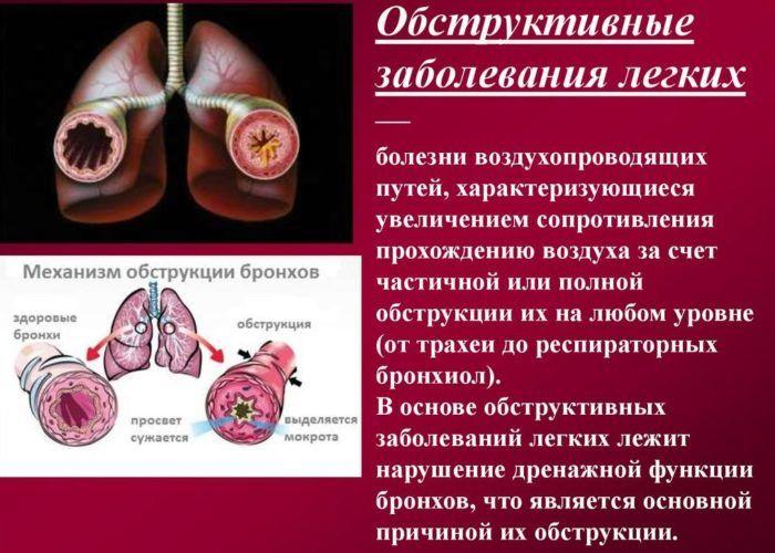 Обструктивные заболевания легких