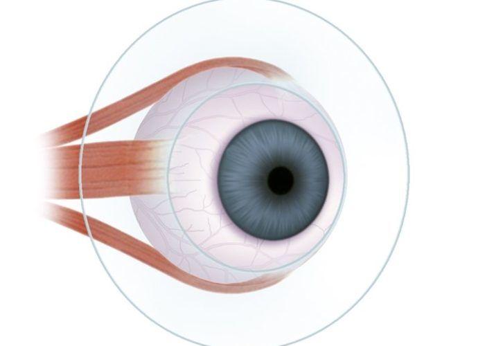 Поражения глазных яблок