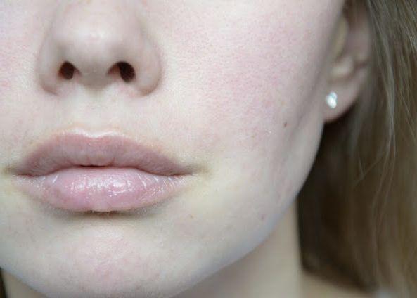 Посинение губ