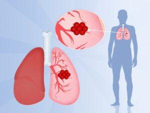 Рак лёгких причины и симптомы