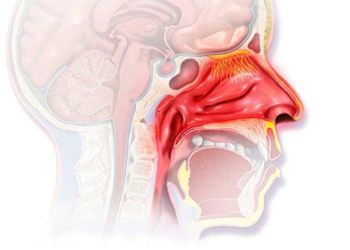 Ринит-синдром воспаления слизистой оболочки носа