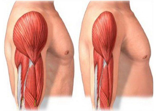 Ослабление мышц