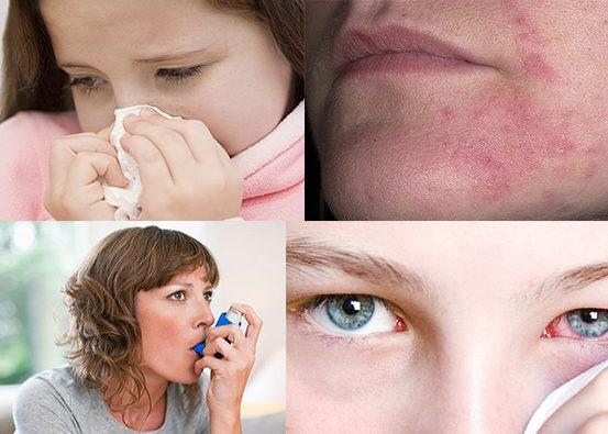 Склонность к проявлению аллергических реакций