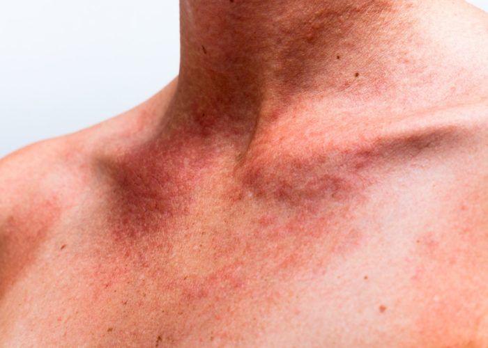 Тяжелые аллергические реакции