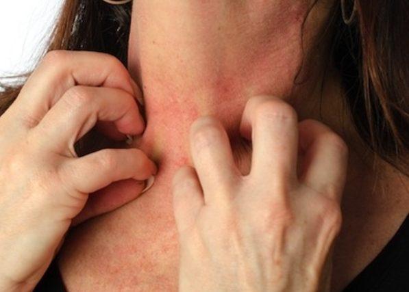 Аллергическая реакция на лекарственные средства и пищевые продукты