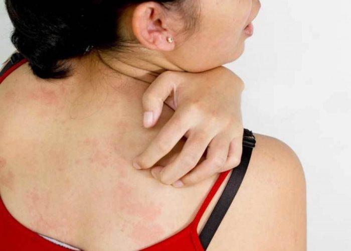 Аллергических реакций