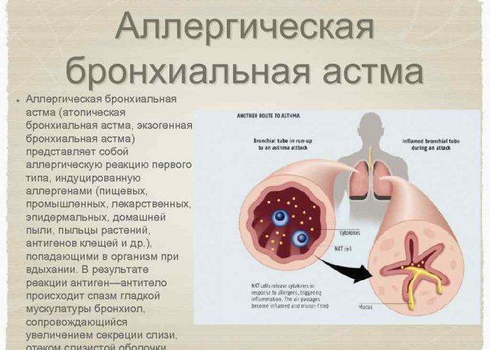 Бронхиальная астма аллергической природы