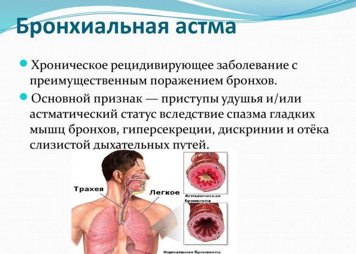 Бронхиальной астмой