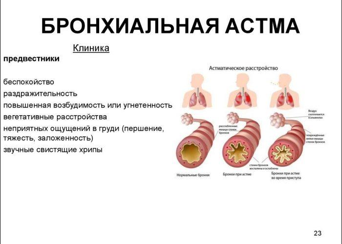 Бронхиальной астмы