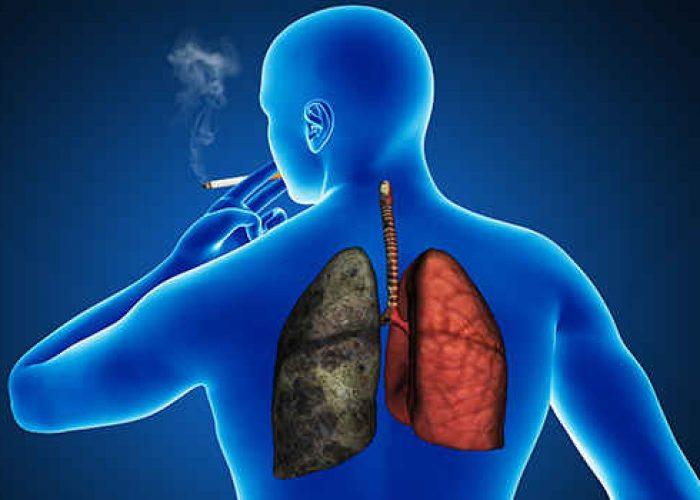 Бронхит курильщиков