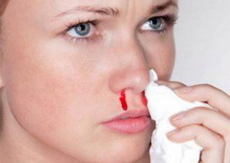 Частые носовые кровотечения