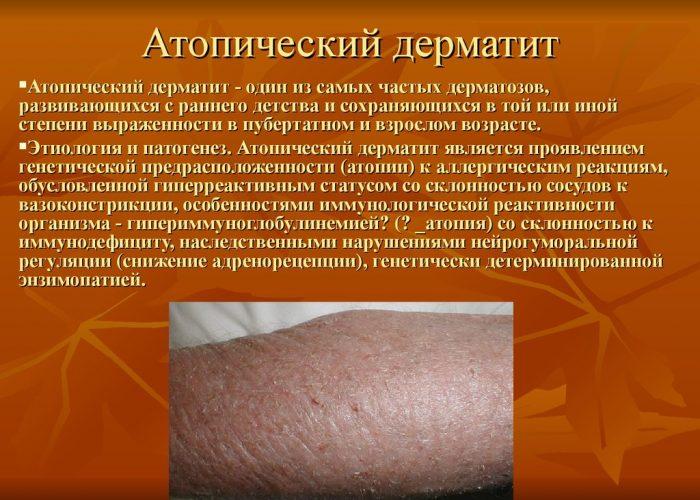Для лечения и профилактики атопического дерматита
