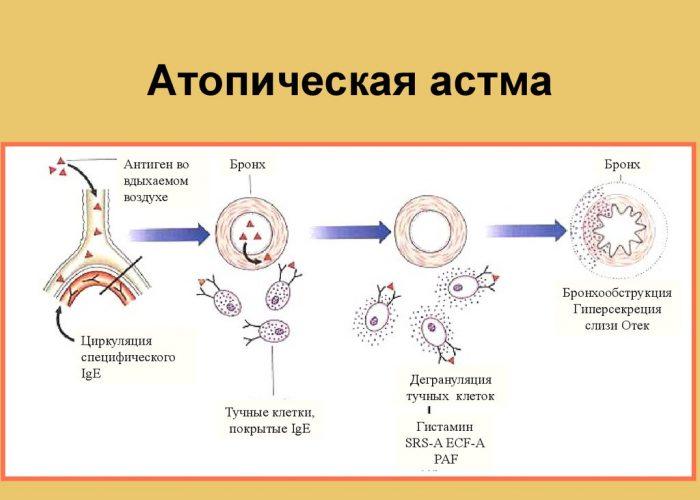 Для профилактики лечения атопической астмы