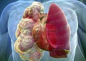 Эмфиземой легких