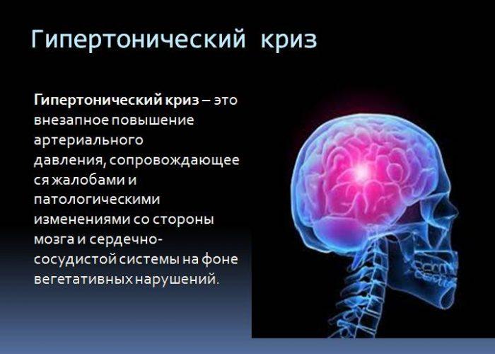 Гипертонические заболевания в тяжелой форме