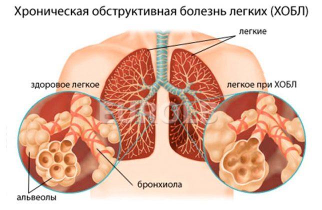 Хроническая обструктивная болезнь легкого