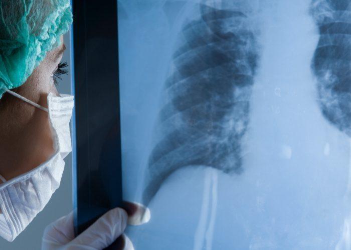 Хронически протекающие заболевания дыхательных путей