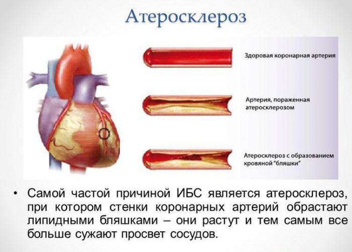 ИБС и коронарный атеросклероз