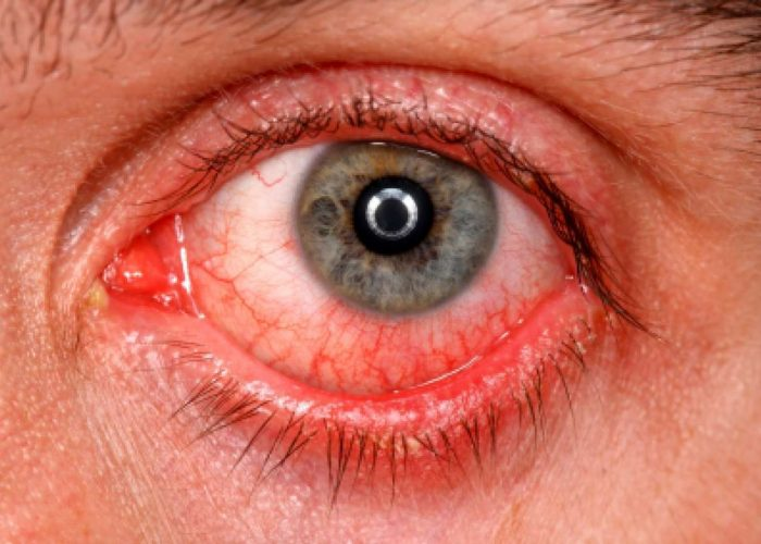 Острый или хронический конъюнктивит